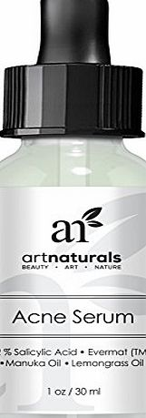 Art Naturals Anti Acne Serum Treatment 1 oz- Dermatologist Tested Product, Made with Organic Ingredients to Help Control amp; Get Rid of Acne - Best Pore Minimizer -For all Ages by ArtNaturals